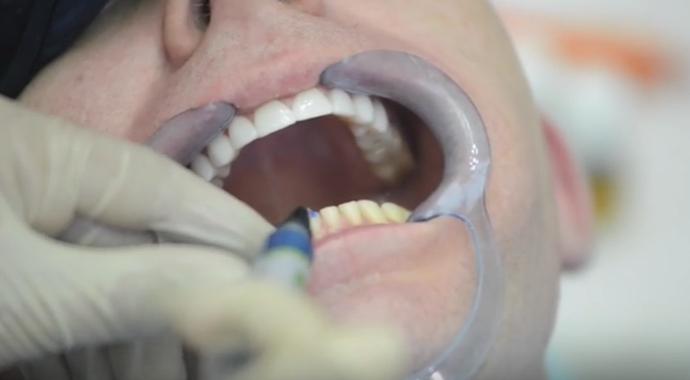 виниры на зуб
